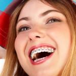 ก่อนจัดฟัน หลังดัดฟัน