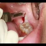 ผ่าฟันคุด 2