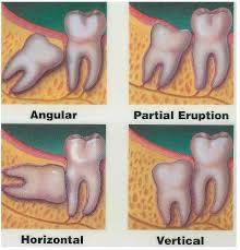 ฟันคุด 2